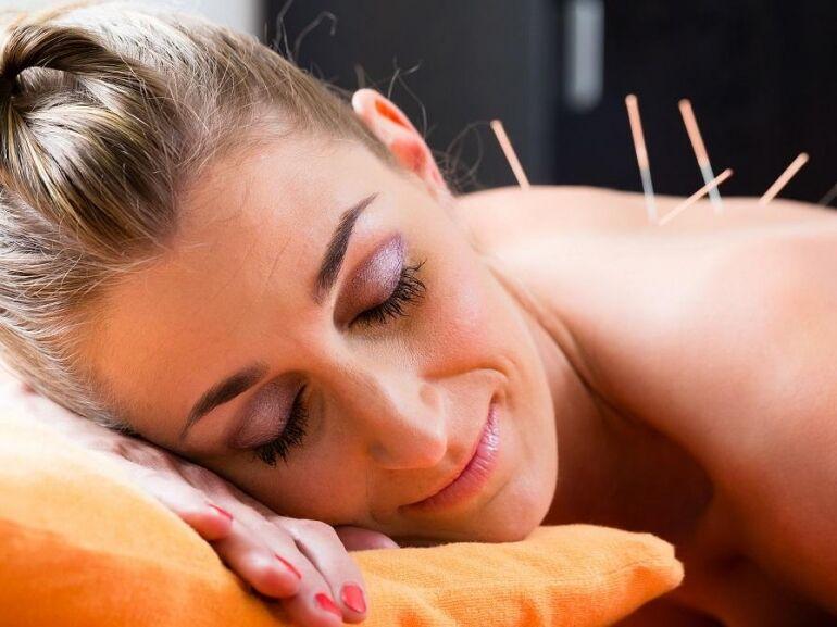 Az akupunktúra fogalma